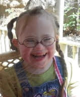The Beautiful Faces of Down Syndrome: All 21 of Them